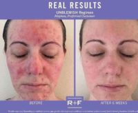 Rodan Fields2.jpeg