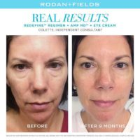 Rodan Fields3.jpeg